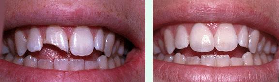 Swansea Porcelain Veneers | Barrington-Swansea Family Dental
